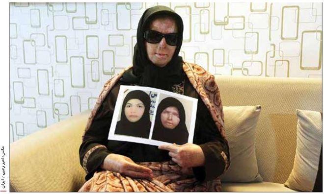 پوران پوریایی قربانی اسیدپاشی، پس از ۵ سال سکوت خود را شکست
